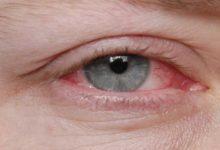 Photo of Hälsohörna 26 – Gnuggning av ögonen och  dess konsekvenser